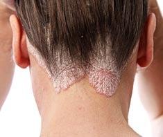 fejbőr pikkelysömör krém alkalmazás fésűvel