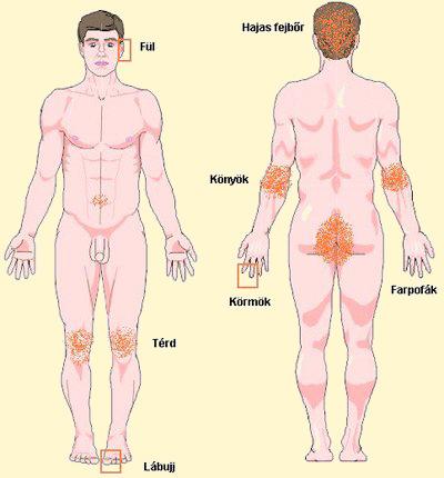 folyékony nitrogén pikkelysömör kezelése