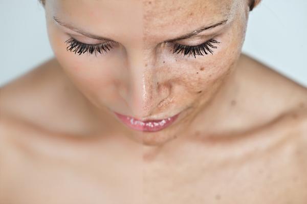 vörös foltok az arcon kémiai hámozás után gyógynövényes kezelések pikkelysömörhöz