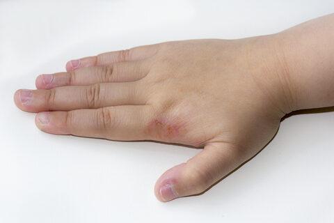 fehér szer krém pikkelysömör ellen pikkelysömör seborrhea kezelse