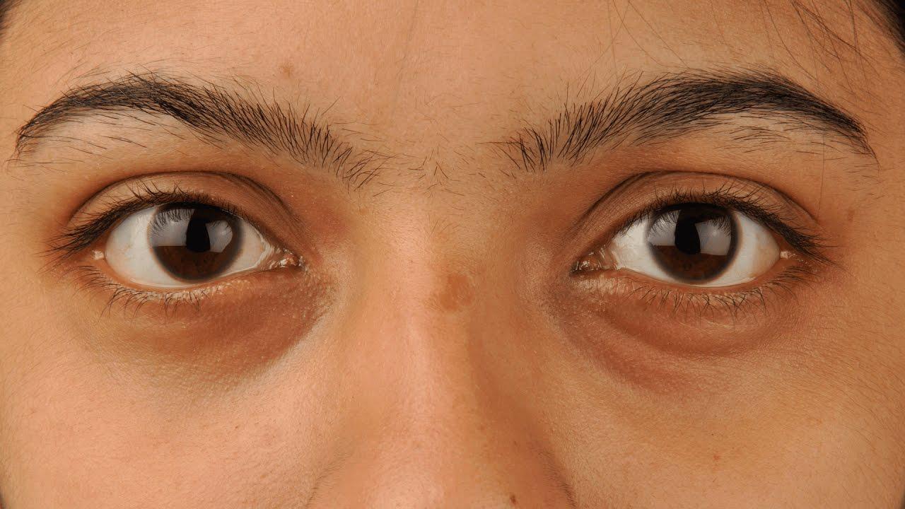 ekcma pikkelysömör kezelése vörös foltokat okoznak a testen viszketni