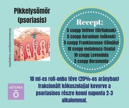 aromillo- egy csepp illat: A pikkelysömör tüneteinek megszüntetése