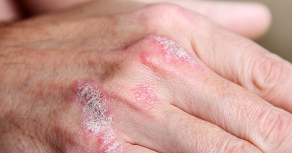a pikkelysömör betegség jelei, lefolyása és kezelése su-jok pikkelysömör kezelése