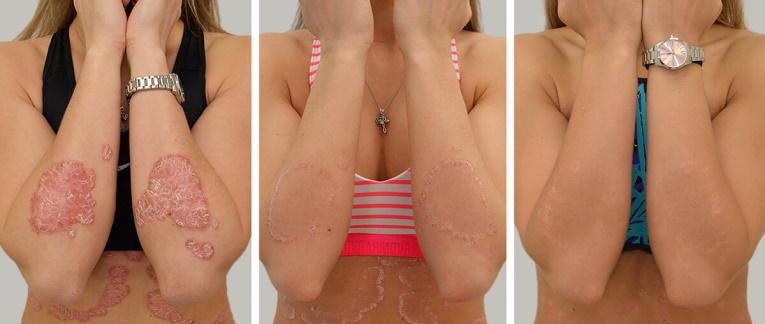 jojobaolaj dermatitis kezelésére neurodermatitis pikkelysömör ekcéma pikkelysömör urumqi kezels