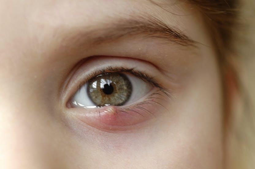 vörös folt jelenik meg a szem alatt és viszket