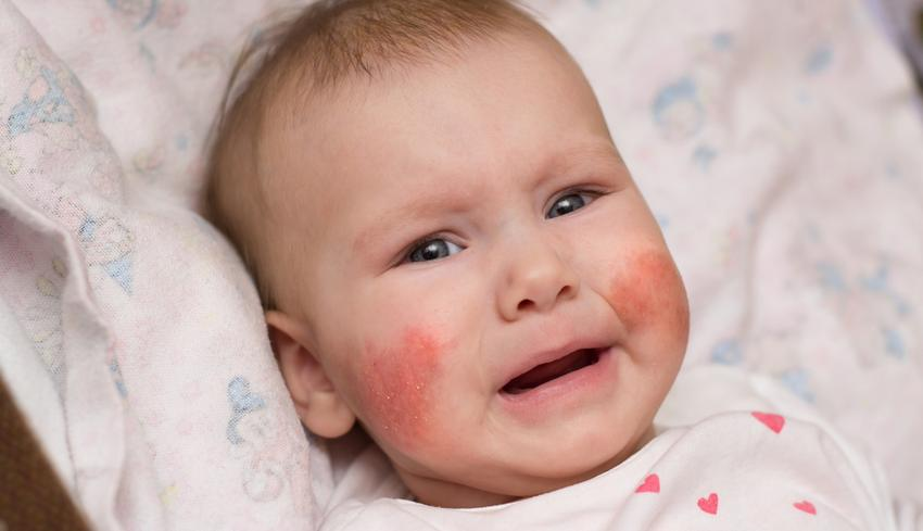 vörös foltok víz után az arcon