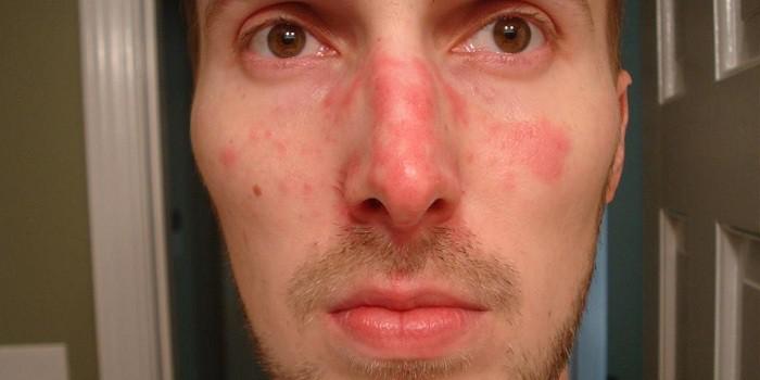 vörös pikkelyes foltok az orrán és az arcán