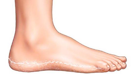 kezelés a vörös foltok lábain