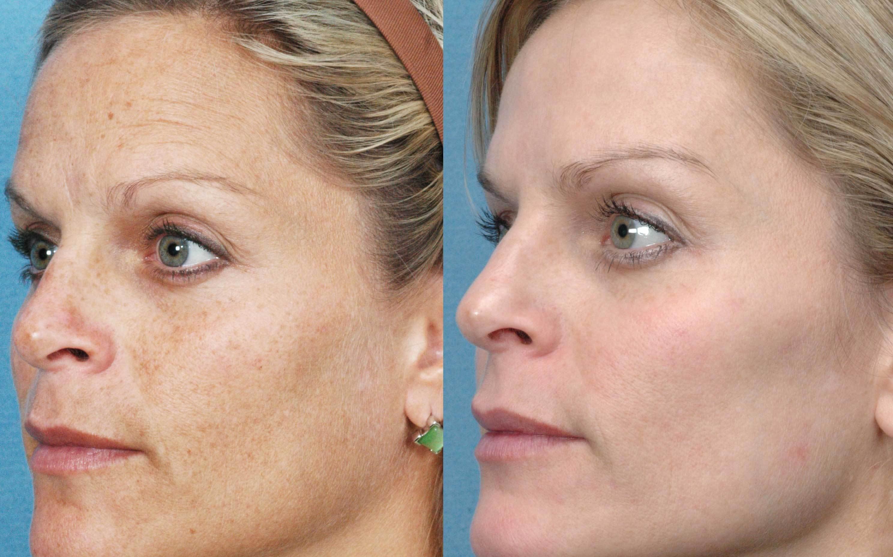 Kozmetikum allergia: Mi kínoz a leggyakrabban? – NIVEA
