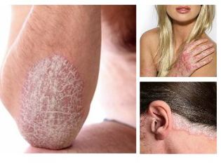 Psoriasis a hajas fejbőrön? Van megoldás! | FranklPharma