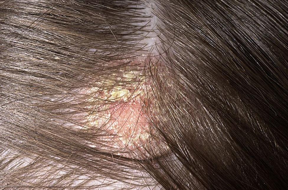 pikkelysömör és gyomorhurut kezelése Imunofan pikkelysömör kezelése