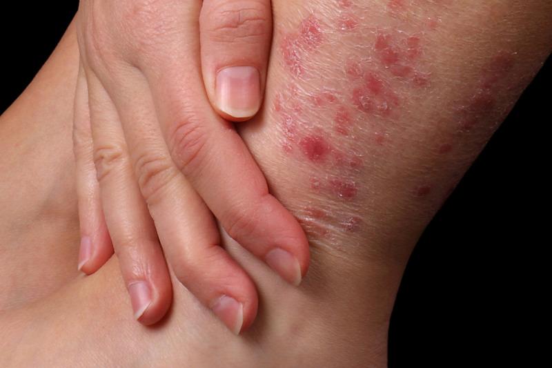 pikkelysömör tünetei okozzák, hogyan kell kezelni