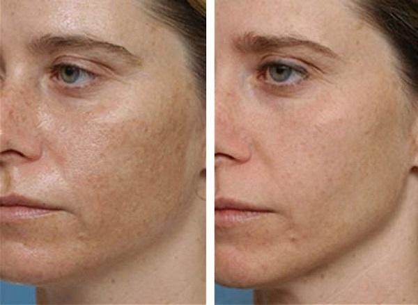 hogyan lehet gyorsan megszabadulni az arcon lévő vörös folttól