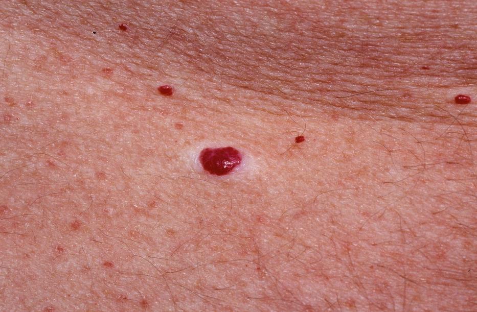 A bőrallergia tünetei és kialakulásának okai