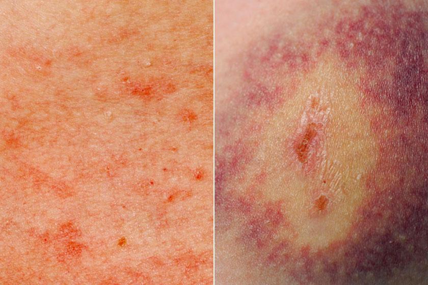 sötétvörös folt a bőrön, felemelt pikkelysömör kezelése fototerápia vélemények