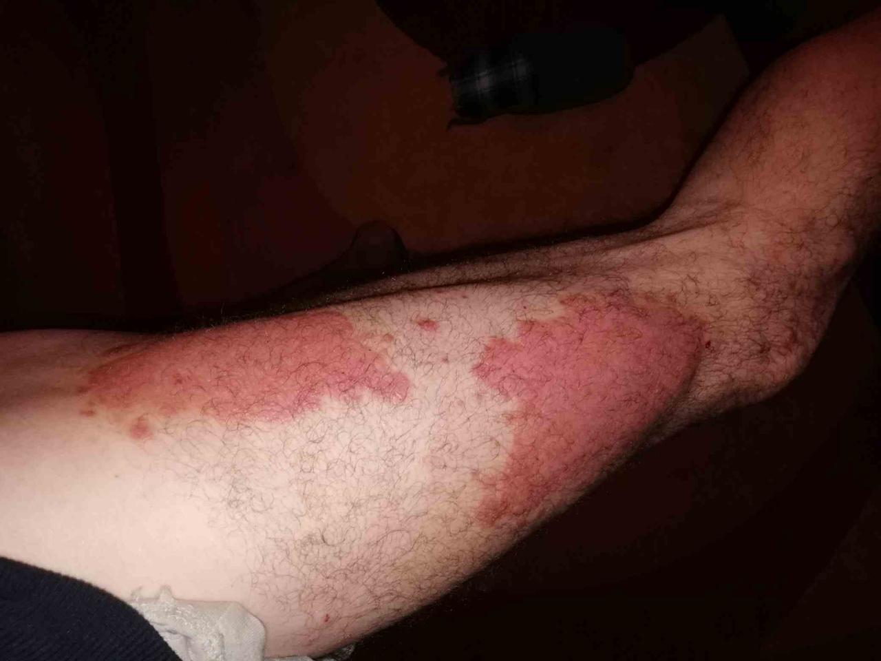Meg akarom gyógyítani a pikkelysömör krém-viasz összetétele egészséges pikkelysömörtől