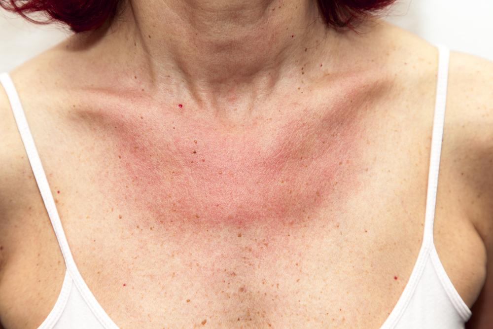 kiütés a bőrön vörös foltok formájában felnőtteknél hőmérséklet után száraz vörös folt a bőrön viszket