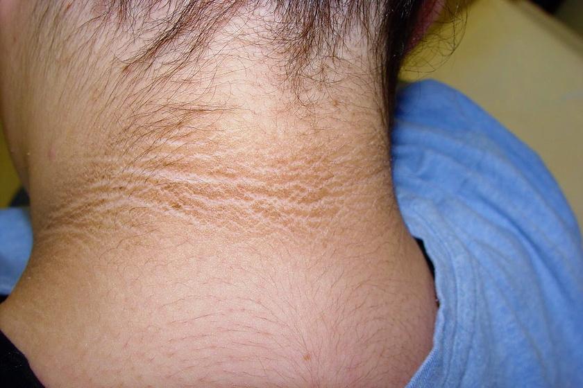 vörös és barna foltok a bőrön gyógyszerek pikkelysömörre a testen felülvizsgálatok