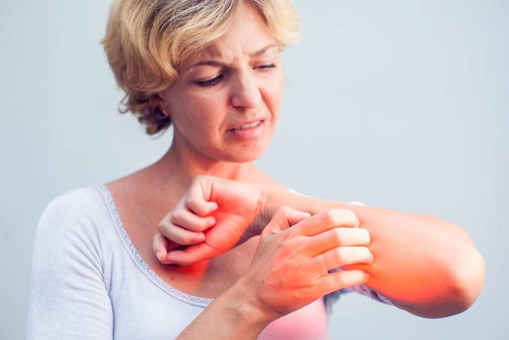 Vörös, viszkető foltok jelentek meg a bőrén? - Patika Magazin Online