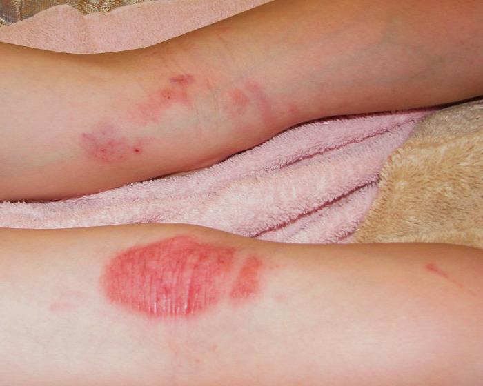 psoriasis kezels cikk
