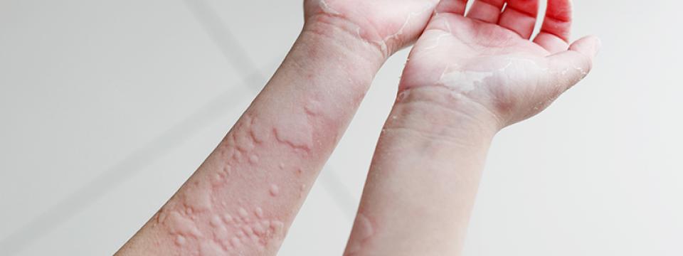 orvosságok pikkelysömörre az arcon ami piros foltot jelent a kézen
