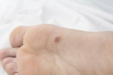 kénes kenőcs pikkelysömör kezelése vörös folt az arcon seb után