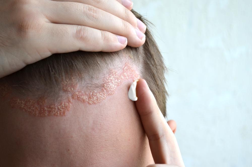 pikkelysömör kezelése népi módszerekkel vörös repedezett foltok az arcon