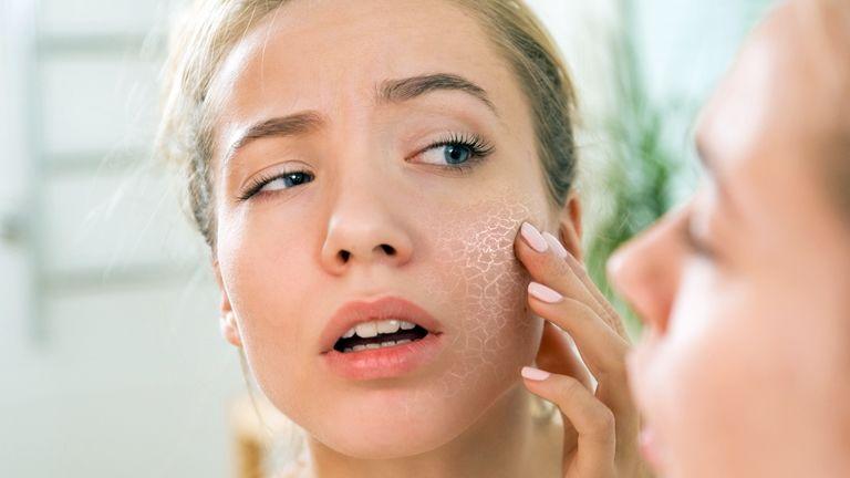 a bőrt vörös foltok borítják, amelyek viszketnek psoriasis vulgaris progresszív stádiumú kezelés