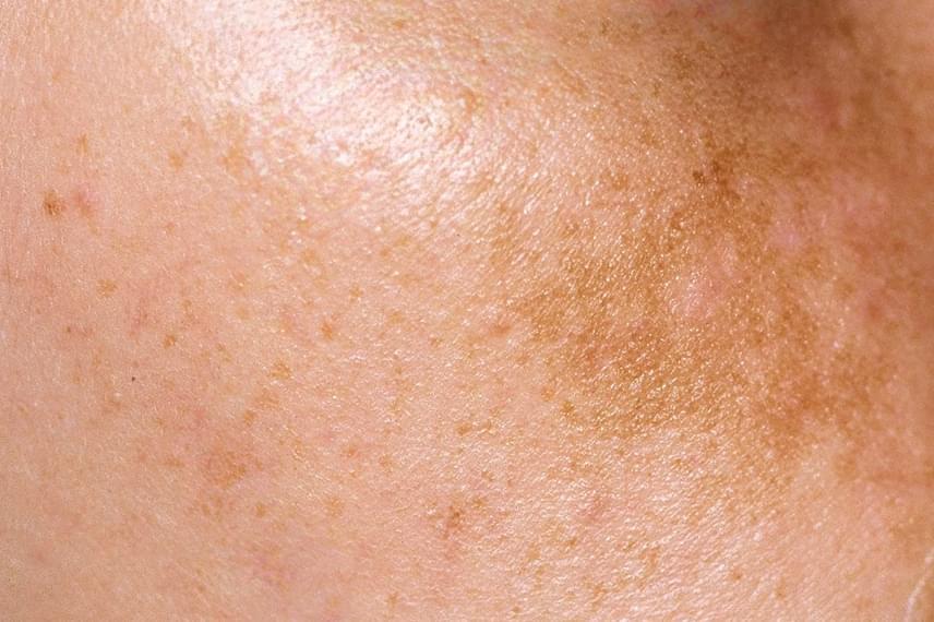hogyan lehet eltávolítani a foltokat az arcon vörös foltok