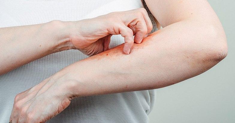 pikkelysömör kezelésének módszerei népi vörös folt az orr közelében