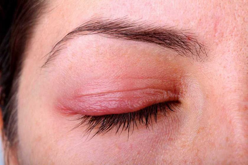 a szem alatt vörös foltok húzódnak le