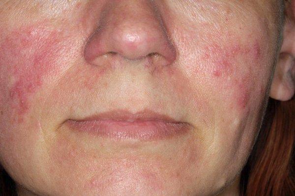 kiütések az arc bőrén vörös foltok formájában vörös foltok a bőrön leválnak a népi gyógymódokról