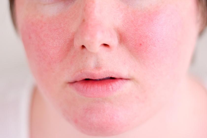 összehúzza az arcot és a vörös foltokat távolítsa el a vörös foltokat az arcon