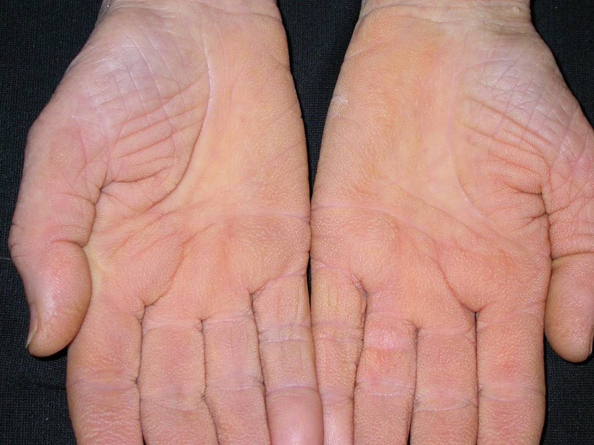 vörös és foltos kéz- és lábbőr
