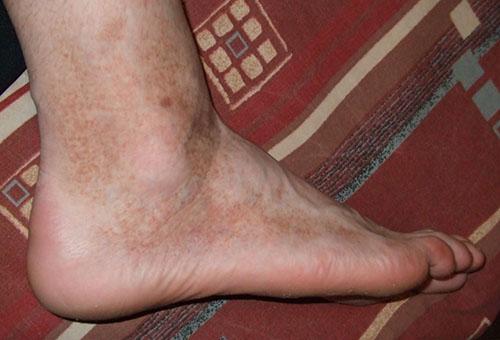 a lábakat vörös foltok borítják nagy piros folt a lábán