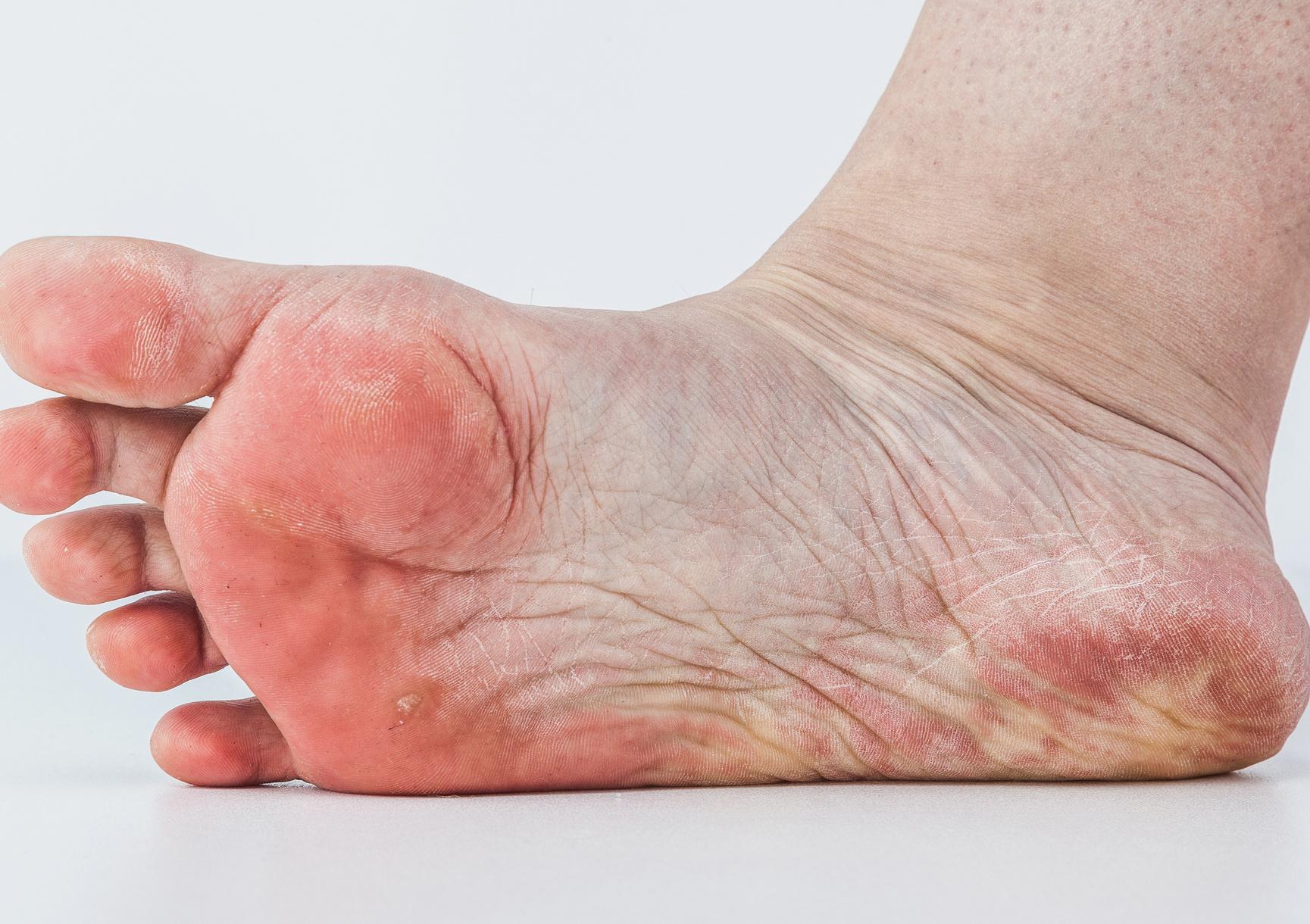 Canesten - A lábgomba tünetei
