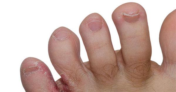vörös viszkető foltok a lábakon könnycsepp pikkelysömör, mint gyógymód