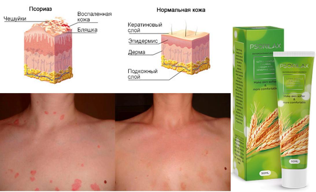 hogyan lehet eltávolítani a hiperpigmentációt a pikkelysömör után a lábakon vörös foltok fájnak és növekednek