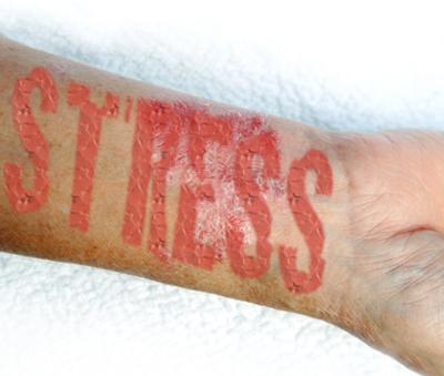 lehetséges-e árajánlatot szerezni a pikkelysömör kezelésére vörös foltok a kezeken és viszkető fotók