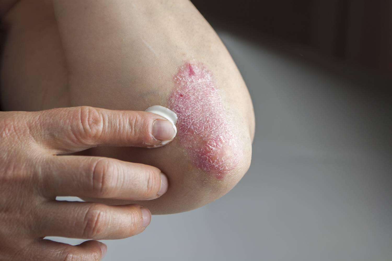 hogyan lehet megszabadulni a vörös foltoktól a pikkelysömör után