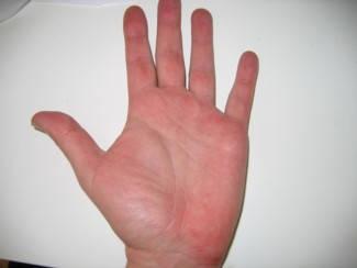 tenyér duzzadt vörös foltok viszketnek vörös megemelt foltok a kezeken viszketnek
