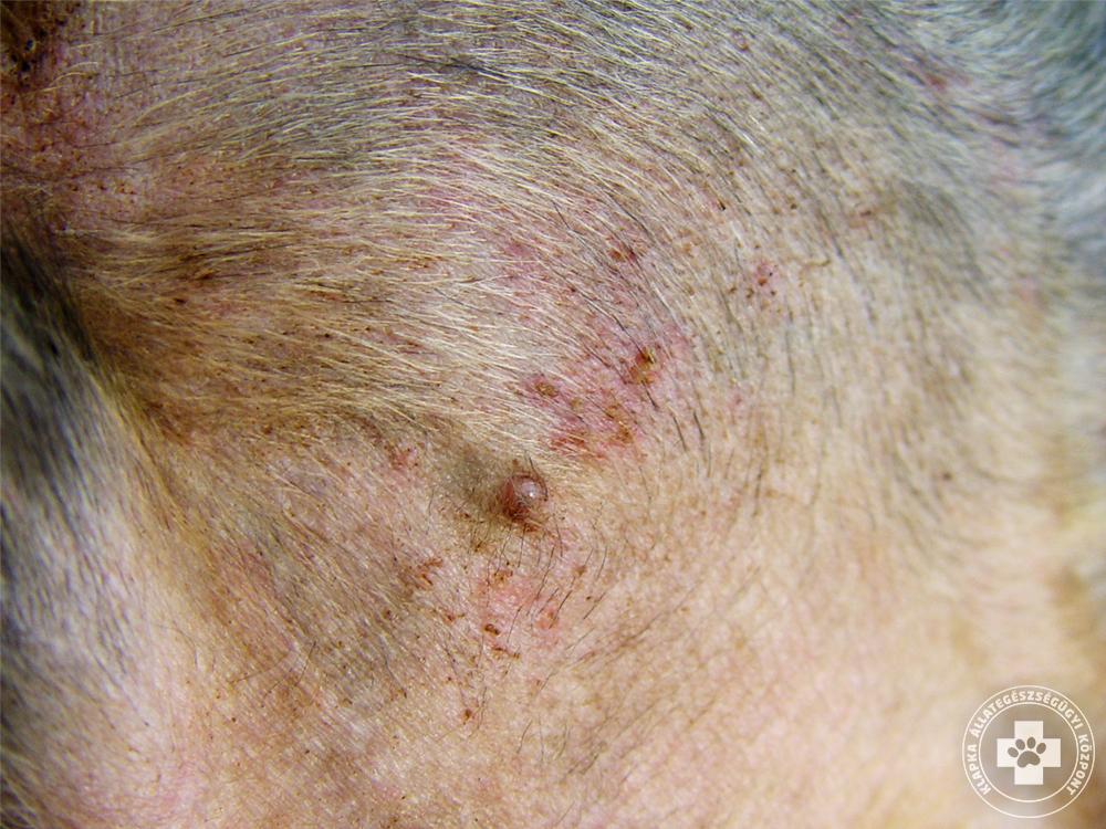 vörös foltok és viszketés az arcon és a nyakon Tibeti gyógyszerek pikkelysömörhöz