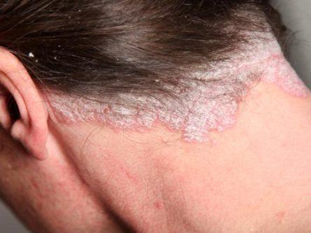 hogyan lehet eltávolítani a pikkelysömör a homlokon vörös foltok az ember testén hogyan kell kezelni