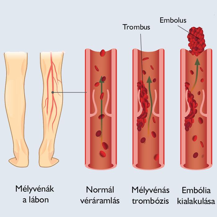vörös foltok a lábakon, mint a zúzódások