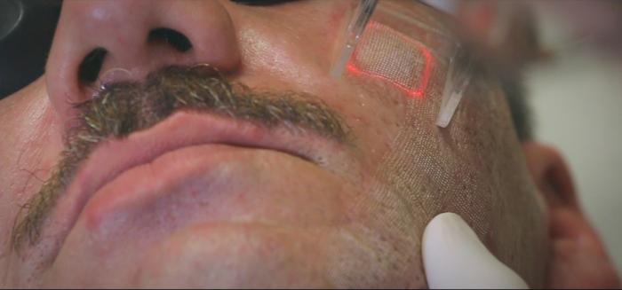 frakcionált pikkelysömör kezelése pikkelyes zuzmó tünetei és kezelési fotó