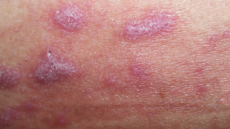 tanácsok a wanga pikkelysömör kezeléséből immun pikkelysömör kezelése