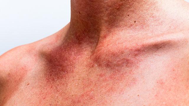 piros folt a nyakon
