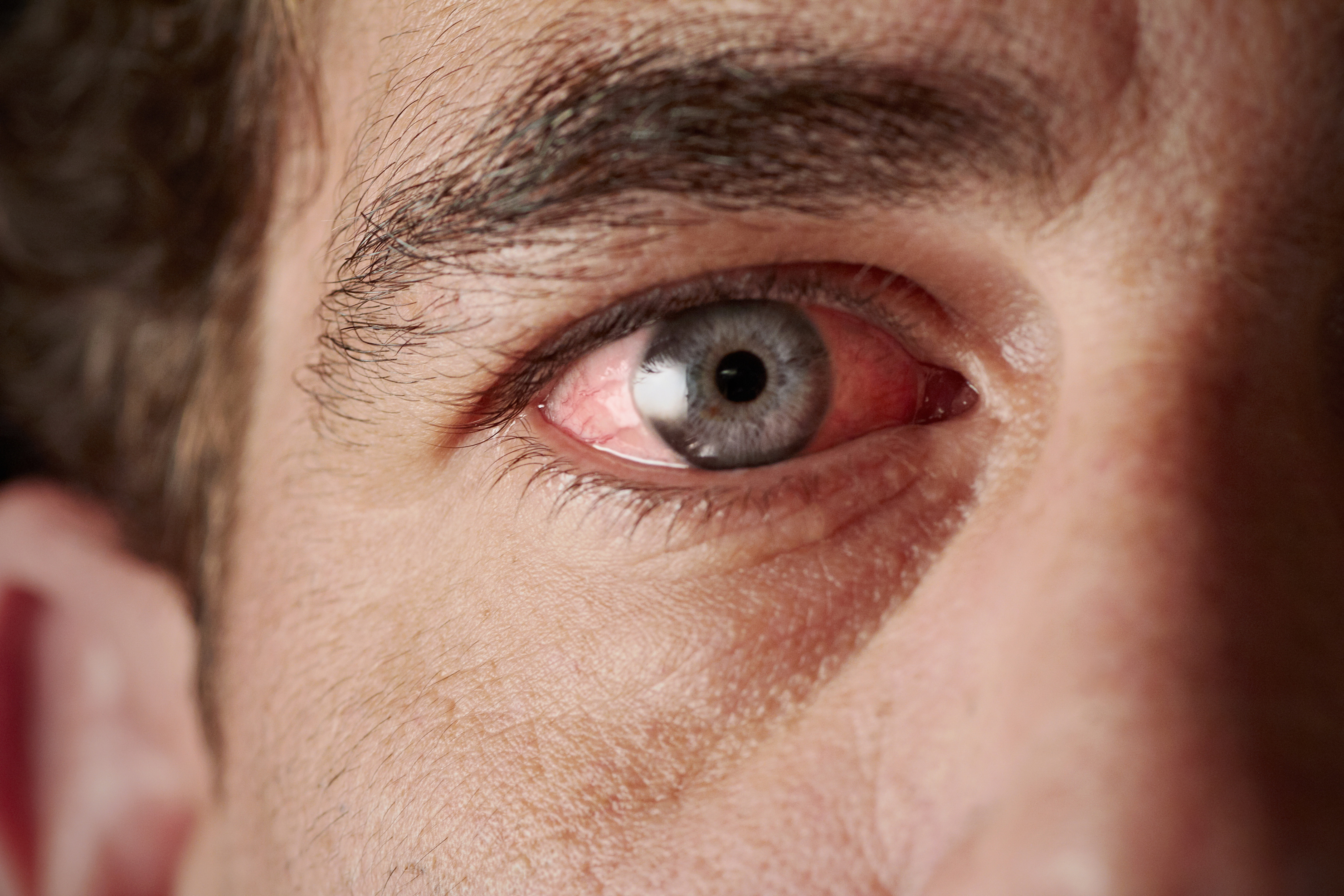 vörös pelyhes foltok a test bőrén herbalists pikkelysömör kezelése