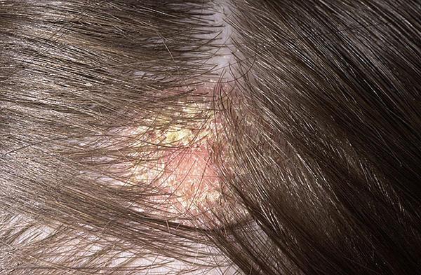 pikkelysömör kezelése heptor paraffin kezelés pikkelysömörhöz
