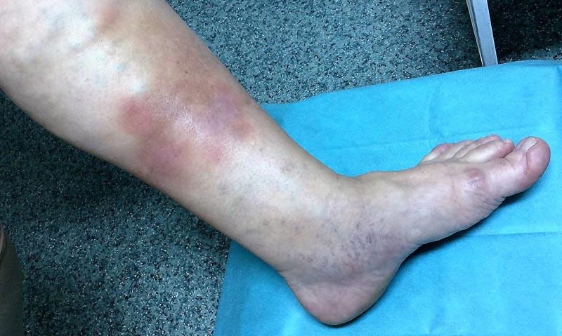 érthetetlen vörös folt a lábán pikkelysömör kezelése és a betegek véleménye